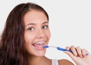 Μπορούν τα σιδεράκια να βλάψουν τα δόντια μου;